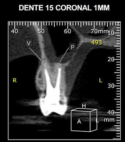dente15-convencional